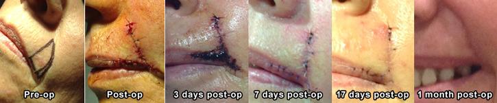Brisbane skin cancer surgery
